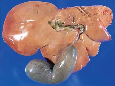 Image for Liver